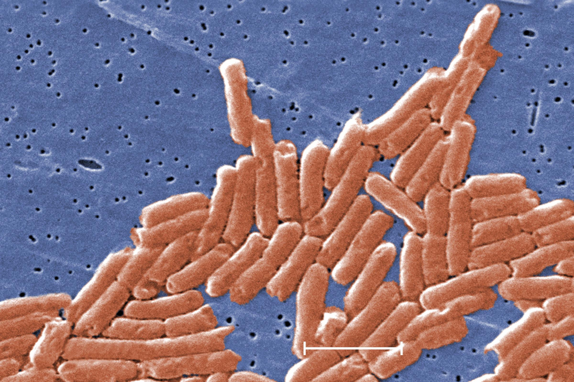 Salmonella research 'could help in development of new treatments' - Richmond and Twickenham Times