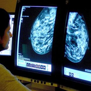 Nice has launched a draft consultation over whether preventative drugs should be given to women with a history of breast cancer